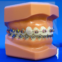 orthodontic emergencies: loose bracket with wax