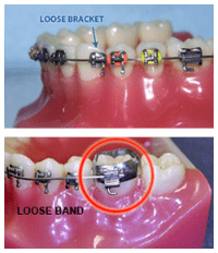 orthodontic emergencies: loose bracket or loose band