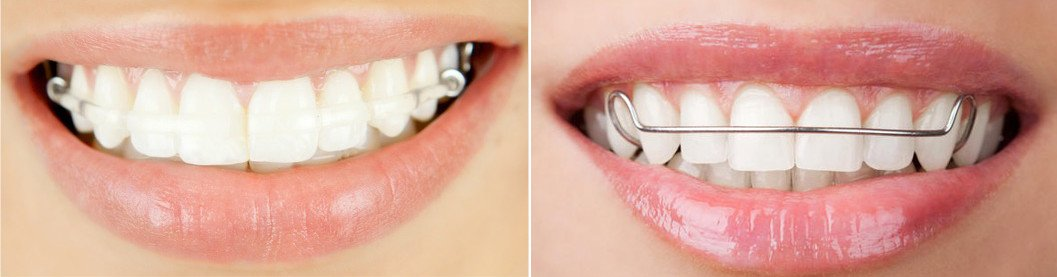 types of retainers: clear retainer and Hawley retainer
